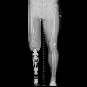 x-ray amputation